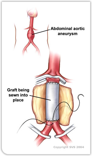 Graft sewn into place for abdominal aortic aneurysm