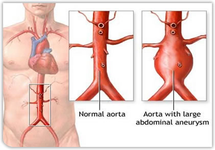 abdominal aortic aneurysms | vascular surgery, Human Body
