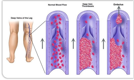 deep vein thrombosis | vascular surgery, Human Body