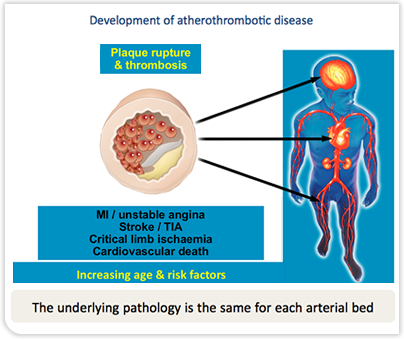 Development of Atherothrombotic Disease - Plaque Rupture and Thrombosis